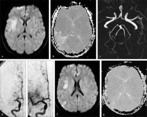 Trombolisis Cerebral Intra-arterial. (a) RM - secuencia de Difusión (DWI), muestra aumento de señal en región silviana profunda derecha compatible con infarto cerebral agudo. (b) RM - secuencia de Perfusión (PWI) muestra una gran area de baja irrigación (hipoperfusión) en el territorio silviano posterior derecho. (c) AngioResonancia Cerebral, muestra una completa oclusión de la arteria cerebral media derecha proximal. (d) Angiografia cerebral digital muestra también una completa oclusión de la arteria cerebral media derecha proximal y una satisfactoria recanalización posterior a una terapia endovascular (e). (f) Control RM DWI no muestra aumento de tamaño de infarto cerebral. (g) Control RM PWI muestra una normalización de la perfusión cerebral en el territorio silviano derecho.