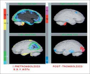 NeuroSPECT cerebral en AVE isquémico agudo. Muestra imágenes de NeuroSPECT cerebral antes y un control posterior a la trombolisis cerebral donde se observa una extensa hipoperfusión (color oscuro) cerebral bilateral mayor a derecha que luego de la trombolisis se revierte completamente (color gris). El paciente tuvo una excelente evolución.