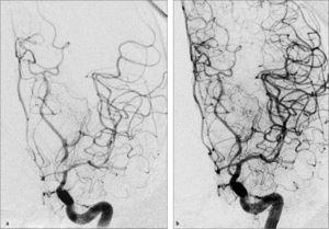 Angioplastia cerebral del vasoespasmo por hemorragia subaracnoidea. (a) Angiografia cerebral digital carotidea izquierda muestra un severo vasoespasmo de arteria cerebral media y cerebral posterior izquierda. (b) Angiografia cerebral luego de angioplastia cerebral farmacológica con Milrinona intra-arterial y angioplastia mecánica muestra un significativa mejoría en el calibre del los vasos de esta circulación.