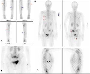 FRACTURAS CON RADIOLOGÍA NORMAL. A Fracturas de stress en peroné derecho (flecha roja) y ambas tibias (flecha azul a izquierda) en deportista de 16 años con dolor. B Fracturas costales, sacroilíaca izquierda, sacro y rama isquiopubiana derecha en mujer de 71 años. C Fractura sacroilíacas y sacro en mujer de 82 años con osteoporosis severa. D Fracturas por tos en mujer de 60 años con dolor torácico.