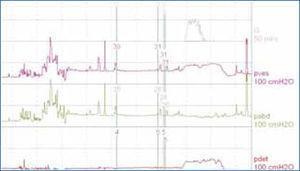 Estudio urodinámico normal (simplificado) Figura 1: Estudio urodinámico normal (simplificado) Q: Flujo, Pves: Presión vesical medida, Pabd: Presión abdominal medida, Pdet: Presión calculada del detrusor.