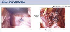 a) La paciente presenta una erosión de la malla de la línea de la vagina anterior y fístula vesicovaginal asociada. El lugar de la erosión de la malla se localizó cerca del meato uretral por cistoscopía. b) Opciones quirúrgicas para fístula vesicovaginal que implican una malla expuesta incluyen reparaciones tansabdominal o transvaginal. Se realizó reparación transabdominal de la fístula vesicovaginal con remoción de malla. El meato uretral estaba muy próximo a la fístula y está indicado por la flecha, pero no fue reimplantado.