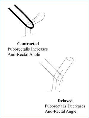 The role of the pelvic floor in the maintenance of continence and the facilitation of defecation Diagrammatic representation of the manner in which the puborectalis muscle influences continence (when contracted) and defecation (when relaxed), through its effects on the ano-rectal angle.