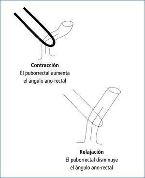 La función del piso pelviano en el mantenimiento de la continencia y la facilitación de la defecación Representación gráfica de la manera en que el músculo puborrectal influye en la continencia (cuando está contraído) y defecación (cuando está relajado) a través de sus efectos en el ángulo ano-rectal.