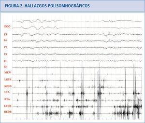 Paciente con TCSR donde podemos ver actividad fásica excesiva en las extremidades superiores e inferiores preservándose la atonía en el músculo mentalis. EOG: electrooculograma. F3: actividad EEG frontal izquierda, F4: actividad EEG frontal derecha. C3: actividad EEG central izquierda. C4: actividad EEG central derecha. O1: actividad EEG occipital izquierda. 02: actividad EEG occipital derecha. MEN: músculo mentalis. LFDS: flexor de los dedos superficial izquierdo. RFDS: flexor de los dedos superficial derecho. LTA: tibial anterior izquierdo. RTA: tibial anterior derecho. LEDB: extensor breve de los dedos izquierdo. REDB: extensor breve de los dedos derecho.