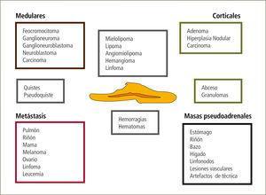 Lesiones suprarrenales que pueden presentarse como incidentalomas