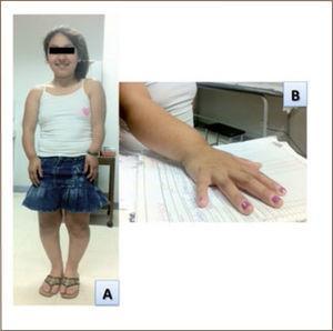 Paciente de 17 años con Síndrome de Leri-Weill. Talla final de 132 cm. Nótese el acortamiento mesomiélico de extremidades superiores e inferiores (A) y la deformidad de Madelung del antebrazo derecho (B).