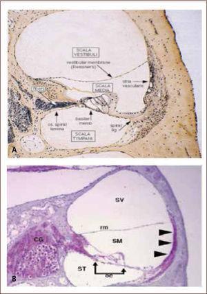 Daño Coclear En cCMV Comparación Con Oído Normal