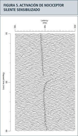 La figura ilustra un nociceptor silente con un campo receptivo en el dorso del pie izquierdo de un sujeto sano, activado por un estímulo eléctrico con frecuencia de 0.25Hz. Súbitamente incrementa la latencia de la respuesta en el minuto 59 del registro, como consecuencia del disparo espontáneo de un tren de potenciales de acción como consecuencia de la sensibilidad adquirida por la capsaicina, el ingrediente activo del ají.