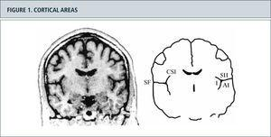 Figura 2. Cortical areas around the Sylvian fissure in the human brain. (Left) Magnetic resonance image of a coronal section through the brain of a healthy human subject. (Right) Schematic outlines of this section. The secondary somatosensory cortex (SII) is situated in the upper bank of the Sylvian fissure (SF). The primary auditory cortex (AI) is situated in the opposite, lower bank of the Sylvian fissure, in Heschl's transverse gyrus. On the medial side, SII is situated close to the insular cortex (I), which lies on the opposite bank of the circular sulcus of the insula (CSI). The cortex above the Sylvian fissure contains multiple somatosensory areas, the functions of which are largely unknown. Nociceptive areas in this region overlap only partly with tactile areas and the classical SII region. Nociceptive areas are also found in parts of the insular cortex. Cortical representation of pain: functional characterization of nociceptive areas near the lateral sulcus.