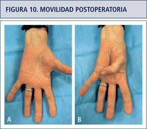 Movilidad post artroplastia. Abducción y aducción del pulgar.