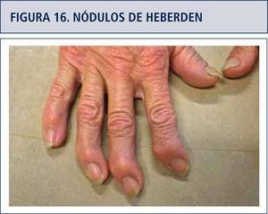 Artrosis interfalángica distal en todos los dedos.