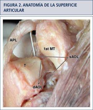 Detalle anatómico de las superficies articulares de la base del primer metacarpiano y aspecto distal del trapecio. Articulación en silla de montar. APL: Abductor Largo del Pulgar MT: Metacarpiano sAOL: Ligamento Oblicuo Anterior