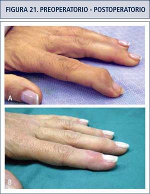 Figura a. Artrosis IFD dedo índice. Figura b. Aspecto post artrodeis.