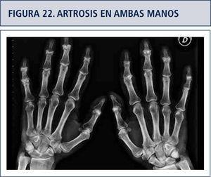 Severa artrosis en ambas manos que compromete las Interfalángica proximales y distales. Nótese que las metacarpo-falángica no tienen daño.