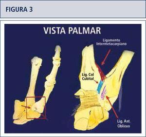 La estabilidad de los ligamentos en torno a la articulación son esenciales en el desarrollo de la artrosis