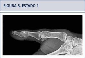 Disminución progresiva del espacio articular, luego una esclerosis del hueso sub-condral, más adelante erosión, osteofitos y sub-luxación articular.