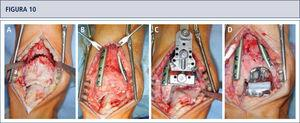 Intraoperatorio (mismo paciente que en Fig. 8). A) Se realizó una osteotomía en cúpula de la tibia distal; B) después de la osteotomía del peroné, la tibia distal fue rotada hasta lograr una línea articular neutra, luego se fijó dos placas; C) resección de la tibia distal utilizando el bloque de resección tibial que estaba alineado por el eje tibial; D) situación final posterior a ATT. Además de una corrección supramaleolar, se realizó una osteotomía por medial del calcáneo para alinear adecuadamente el talón.