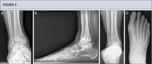 Evaluación preoperatoria en artrosis avanzada dolorosa en una mujer de 53 años. 19 años después de un esguince severo de tobillo. La evaluación radiográfica muestra un grado avanzado de artrosis de tobillo con la formación de un quiste subcondral bipolar, una leve extrusión anterior del astrágalo y una estabilidad peri-talar con la consecuente inclinación valgo del astrágalo con respecto al calcáneo. A) vista antero-posterior del tobillo; B) vista lateral del pie; C), vista de alineación de Saltzman; D) vista antero-posterior del pie.