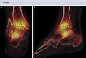 SPECT-TC muestra un proceso activo del tobillo y en la articulación subtalar, este examen ayudó a identificar la fuente del dolor. Basado en esto, una artroplastia total combinada con una artrodesis subtalar se realizó (mismo paciente que en Fig. 5). A) vista plano coronal; B) vista plano sagital.