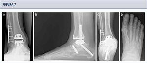 Siete años después de la cirugía, el paciente está muy satisfecho con el resultado. Radiografías muestran un tobillo bien equilibrado y los implantes estables. A) vista anteroposterior del tobillo; B) vista lateral del pie; C), vista de alineación de Saltzman; D) vista antero-posterior del pie.