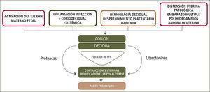 Etiología parto prematuro FFN: Fibronectina Fetal. EHH: Eje Hipotálamo-Hipofisiario.