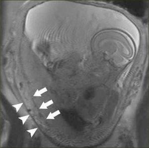 RNM acretismo placentario