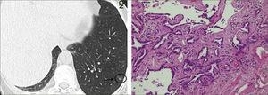 Lesión en VE puro de 6mm: Adenocarcinoma in situ.