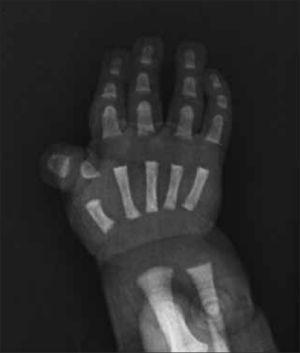 Rx de mano obtenida en período de recién nacido demuestra alteración característica del dedo pulgar correspondiente al síndrome de Rubenstein Taybi.