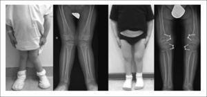 Hemipifisiodesis alrededor de la rodilla en genu valgo secundario a displasia espondilometafisiaria Publicación autorizada por paciente.