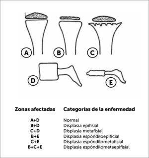 Anormalidades radiológicas útiles en el proceso de clasificación de laS displasias esqueléticas.