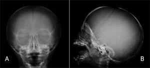a y b. Rx de cráneo de paciente portador de osteogénesis imperfecta. Se observan alteraciones de osificación y presencia de múltiples huesos wormianos. a) Rx Frontal, b) Rx Lateral.