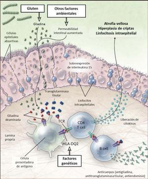 Esquema fisiopatología en la enfermedad celíaca El gluten es digerido en el lumen y ribete en cepillo intestinal a péptidos, principalmente gliadina. La gliadina induce cambios a través de la inmunidad innata en el epitelio y de la inmunidad adaptativa en la lámina propria. En el epitelio el daño provoca sobreexpresión de interleukina 15, que a la vez activa los linfocitos intraepiteliales. Estos linfocitos se tornan citotóxicos y dañan los enterocitos que expresan proteínas de stress en su superficie. En situaciones de aumento de la permeabilidad intestinal, como en las infecciones, la gliadina entra a al lamina propria donde es deaminada por la enzima transglutaminasa tisular, permitiendo la interacción con el HLA-DQ2 o HLA-DQ8 de la superficie de las células presentadoras de antígenos. La gliadina es presentada entonces a los linfocitos T CD4+ resultando en mayor producción de citokinas que causan daño. Todo esto lleva a la atrofia vellositaria e hiperplasia de criptas, y a la expansión de linfocitos B con la consecuente producción de anticuerpos. Adaptado de 13.