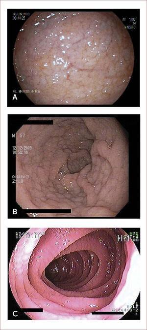 IMÁGENES ENDOscópicas de duodeno Imágenes endoscópicas de duodeno donde se aprecian nodularidad, adelgazamiento y visualización de vasculatura submucosa (A), marcada nodularidad con patrón empedrado (B), y aspecto festoneado de la mucosa (C). Las imágenes corresponden a pacientes tratados por los autores.
