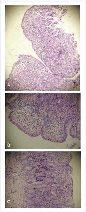 imágenes histológicas de biopsias duodenales Imágenes histológicas de biopsias duodenales de pacientes con enfermedad celíaca (tinción con hematoxilina-eosina). A. Atrofia total de las vellosidades. B. Linfocitos intraepiteliales >40 por cada 100 enterocitos. C. Notoria hiperplasia de las criptas.