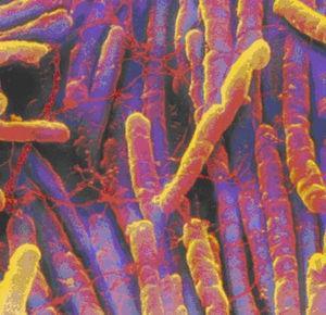 Microscopia electrónica –Clostridium Difficile.