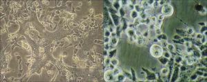 """Técnica de aislamiento viral A. Células Hep-2 infectadas por virus respiratorio sincicial. Se observa formación de sincicios producto de la fusión de membranas secundaria a la presencia de la proteína viral de fusión (F) tras la replicación viral efectiva. B. Células Vero infectadas por virus herpes simplex tipo 2. Se observa efecto citopático característico, con focos de lisis celular y megacariocitos (células """"abalonadas""""). Gentileza de Dra. María José Martínez."""