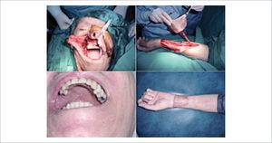 Arriba izquierda, gran defecto de trígono retromolar y seno maxilar por resección de cáncer espinocelular. Arriba derecha, elevación de un colgajo fasciocutáneo radial. Abajo izquierda, evolución del colgajo a un año de seguimiento. Abajo derecha, zona dadora a un año de seguimiento.