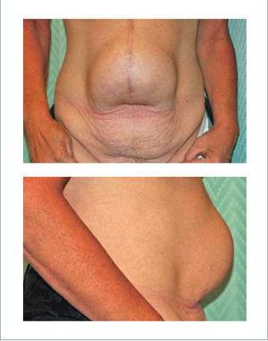 HERNIA INCISIONAL POSTERIOR A CIRUGÍA BARIÁTRICA ABIERTA Downey S. Approach to the abdomen after weight loss. Rubin P, Matarasso A. Aesthetic Surgery After Massive Weight Loss. 1ed. Philadelphia, PA. USA. Saunders, Elsevier. 2007. Cap 5, pág 50.