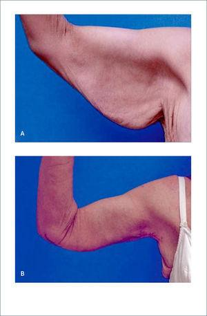 BRAQUIOPLASTIA a) Paciente con baja de peso de 79kg. b) Dos años posbraquioplastia Strauch B, Greenspun D. Approach to the arm after weight loss. Rubin P, Matarasso A. Aesthetic Surgery After Massive Weight Loss. 1ed. Philadelphia, PA. USA. Saunders, Elsevier. 2007. Cap 9, pág 135.
