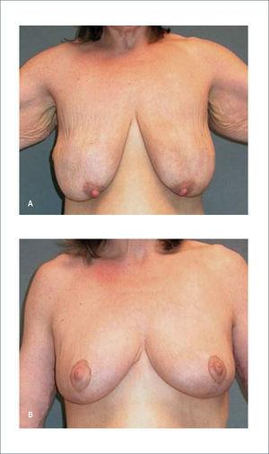 MASTOPEXIA a) Paciente de 46 años, posterior a baja de peso de 73kg. b) Seis meses después de una mastopexia Rubin P, O'Toole J, Agha-Mohammadi S. Approach to the breast after weight loss. Rubin P, Matarasso A. Aesthetic Surgery After Massive Weight Loss. 1ed. Philadelphia, PA. USA. Saunders, Elsevier. 2007. Cap 4, pág 44.