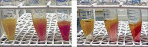 Izquierda: Tejido lipoaspirado reciente en tubos de centrifugación. Derecha: Aspecto luego de la centrifugación a 1200 G x 3 minutos, se aprecian 3 capas: una capa oleosa superior, una capa intermedia de tejido útil y una capa acuosa inferior.