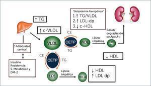 PATOGENIA DE LA DISLIPIDEMIA DIABÉTICA. CETP = Colesterol ester transfer protein Ce= Colesterol-ester TG=triglicéridos; VLDL= lipoproteínas de muy baja densidad LDL= lipororteínas de baja densidad; HdL lipoporteinas de alta densidad dp= densas y pequeñas