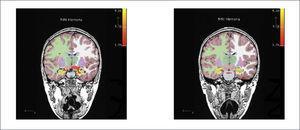 CORTES CORONALES DE SEGMENTACIÓN OBTENIDA CON FREESURFER FUSIONADO CON LA ACTIVACIÓN DE LA RESONANCIA FUNCIONAL DE MEMORIA Se visualiza que la activación de los hipocampos está ubicada sobre la segmentación hipocampal (color amarillo).