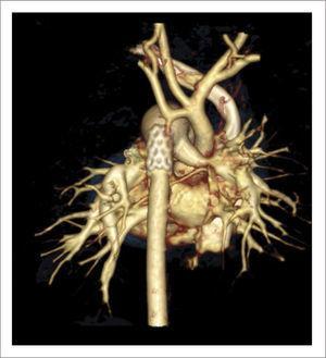 TOMOGRAFÍA AXIAL COMPUTADA ARCO AÓRTICO Tomografía axial computada que muestra arco aórtico hipoplásico, con coartación crítica e hipoplasia del arco, post implante de stent ductal Banding de arteria pulmonar izquierda, y posterior a stent se ve parcialmente banding de arteria pulmonar derecha.