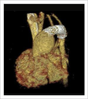TOMOGRAFÍA COMPUTADA IMPLANTE STENT DUCTAL Muestra resultado post implante de stent ductal y banding de arterias pulmonares.