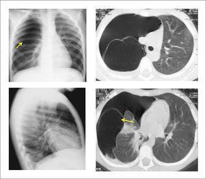 MALFORMACIÓN CONGÉNITA DE LA VÍA AÉREA PULMONAR TIPO IV EN PREESCOLAR DE 4 AÑOS Imagen radiológica y TAC pulmonar.