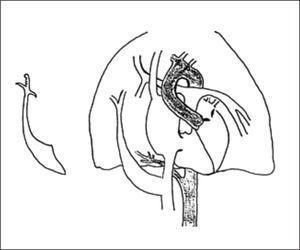 SIGNO DE LA CIMITARRA Representación esquemática extraída de Vega F Rodrigo et al. Signo de la Cimitarra. Rev. chil. Radiol 2013; 19(4): 187-189.