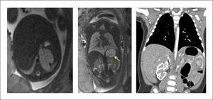 SECUESTRO PULMONAR EXTRALOBAR INFRADIAFRAGMÁTICO Diagnóstico prenatal por resonancia magnética fetal.