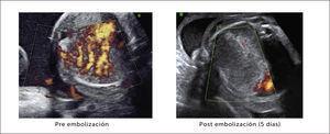 MANEJO ANTENATAL DE UNA MALFORMACIÓN CONGÉNITA DE LA VÍA AÉREA PULMONAR Se visualiza imagen doppler previo a embolización arterial y 5 días después (28 semanas de gestación).